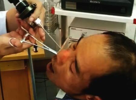 わお!男性の鼻の穴から大きなヒル(蛭)を取り出す映像が(@_@;)