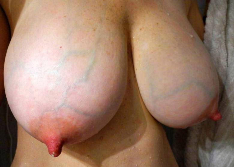 huge areola breasts