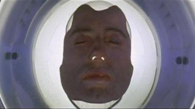 世界初の顔面移植成功までのドキュメンタリー映像が話題に ※動画アリ※
