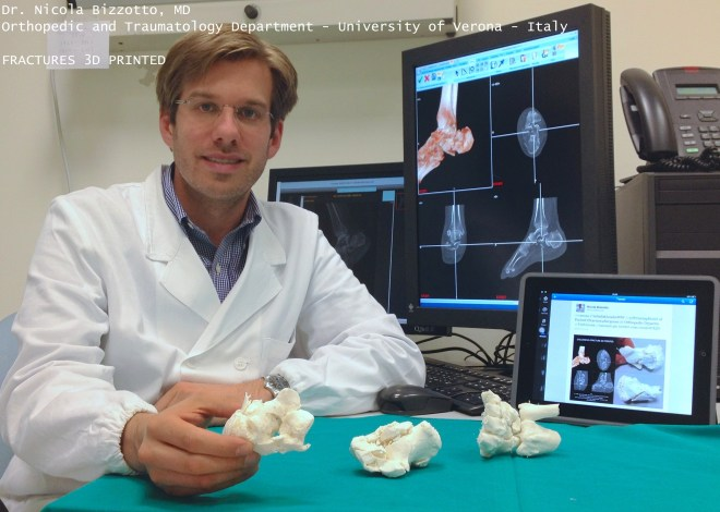 Dr. Bizzotto and his 3D printed bone replicas