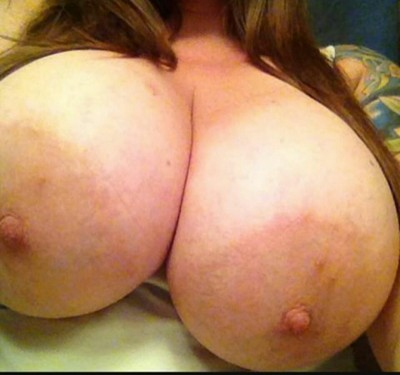 large diameter areola