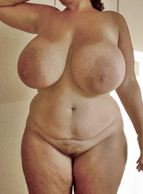 Breast reduction gigantomastia photos