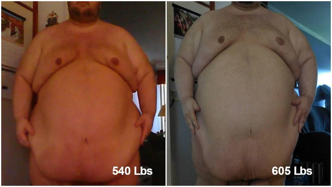 massive superchub belly