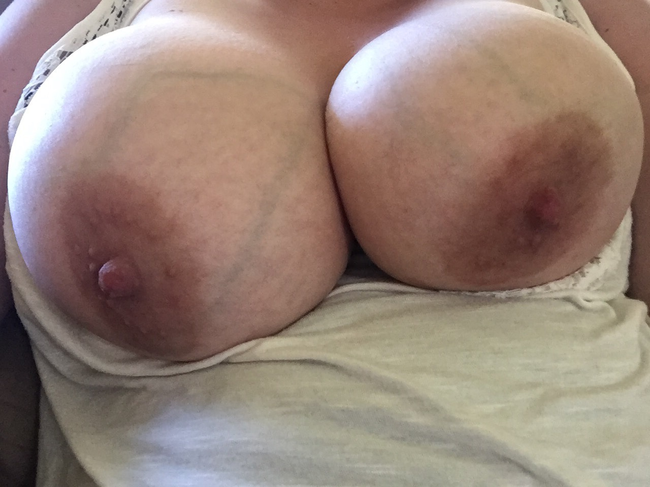 uneven boobs naked