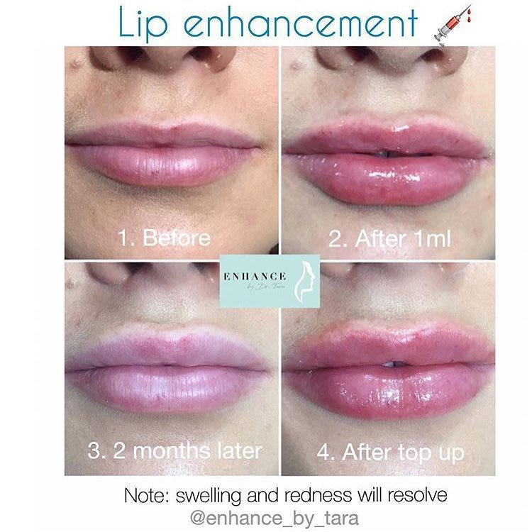 Fillers with @enhance_by_tara