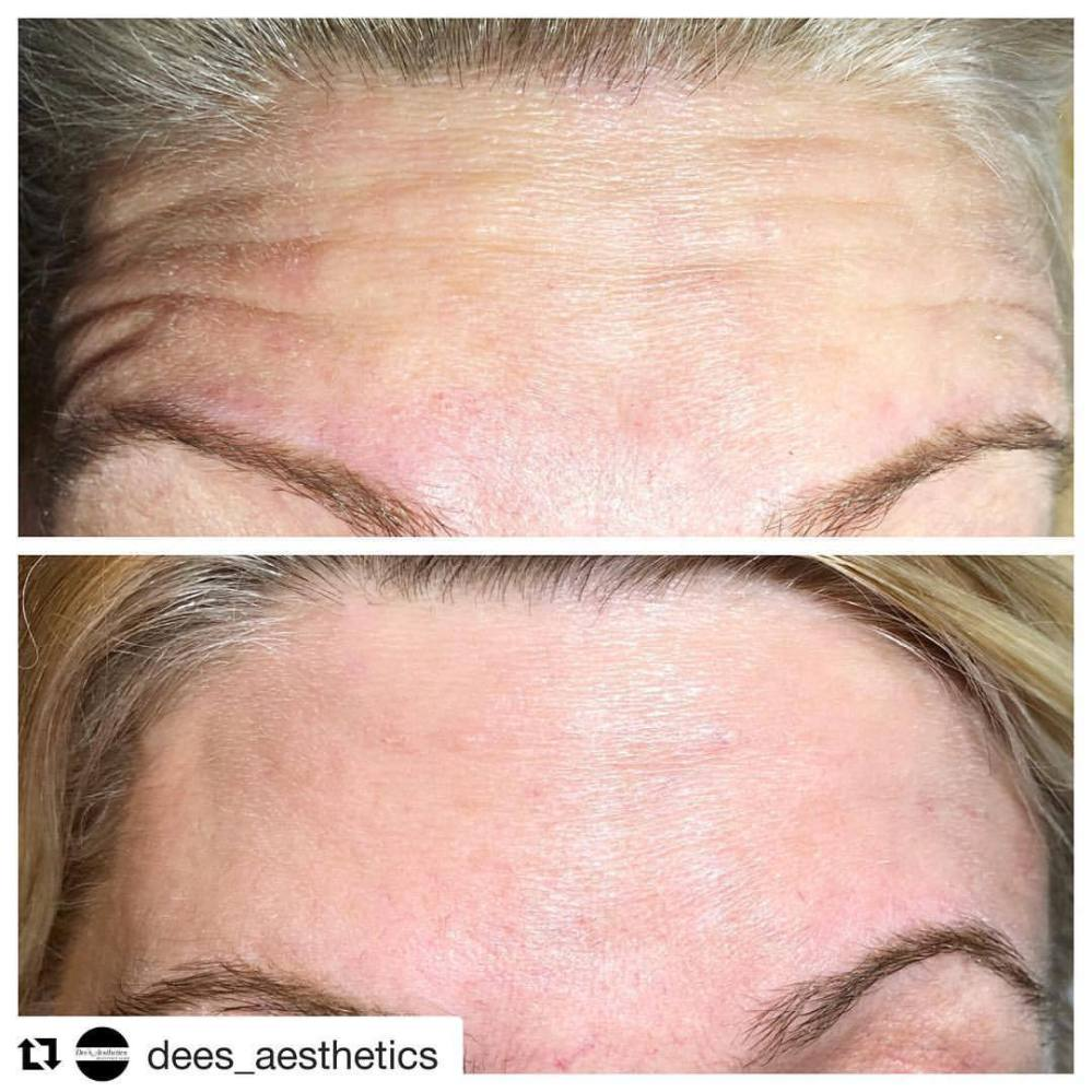 #Repost @dees_aesthetics with @get_repost ・・・ #Botox‼️ 💉 🌟Before & After - Proven Amazing Results 🌟  Free consultations available