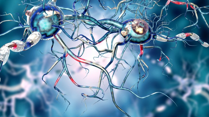 3d illustration of nerve cells. Affected Human nervous system, concept for Neurological Diseases, tumors and brain surgery.