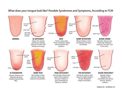 Medium Of Black Spots On Tongue