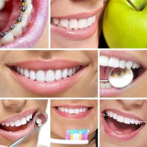 adult dentistry ballantyne charlotte nc robert harrell 28277 best dentist cleaning