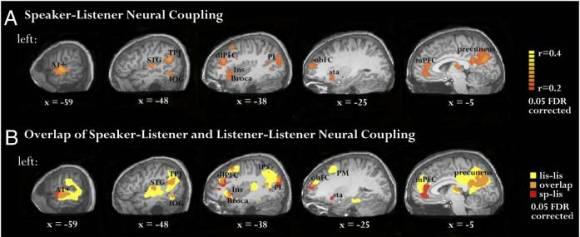 neural coupling 3