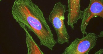 HeLa cells stained with antibody to actin (green), vimentin (red) and DNA (blue). Photo credit: By Gerry Shaw, GFDL (http://www.gnu.org/copyleft/fdl.html)