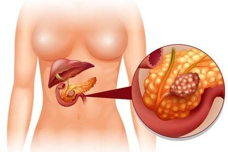 44381780 - pancreas cancer in woman illustration