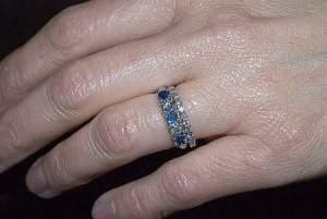 wedding-ring-allergy