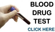 How To Pass A Blood Drug Test.