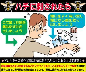 蜂に刺されたら水で洗い流して応急処置