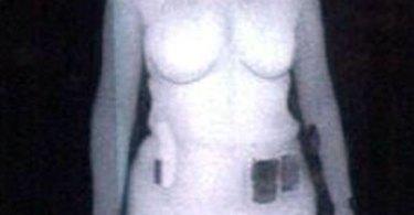 Backscatter_x-ray_image_woman