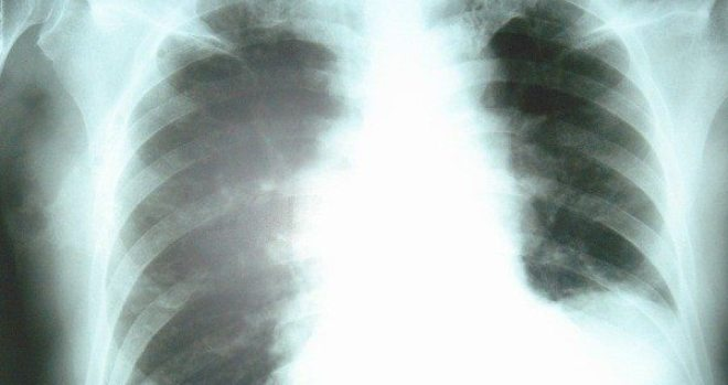 Xray of a lung infected with Pneumonia