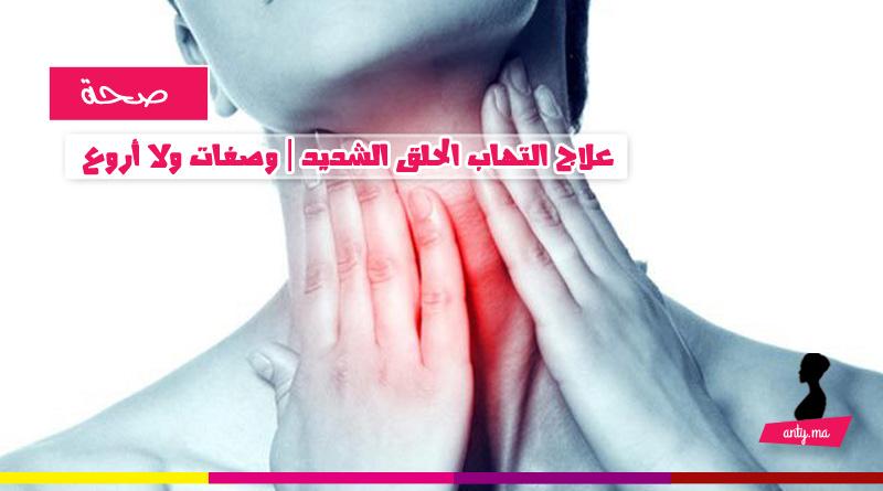 علاج التهاب الحلق الشديد : وصفات ولا أروع