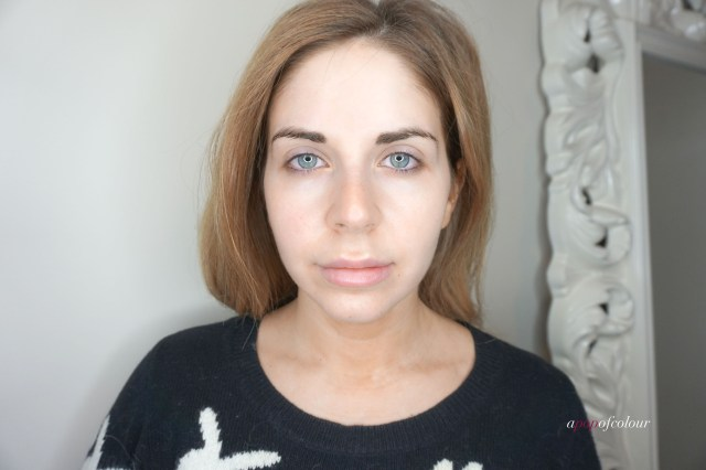 Before photo using the Silk'n Anti-Aging Facial Skin Lifting and Tightening device