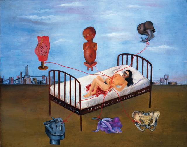 """""""Henry Ford Hospital"""" (1932) En este cuadro se retrata el aborto que sufrió."""