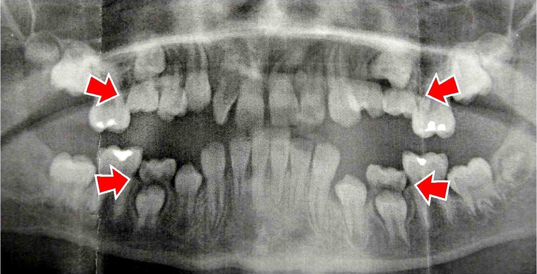Xray of front teeth