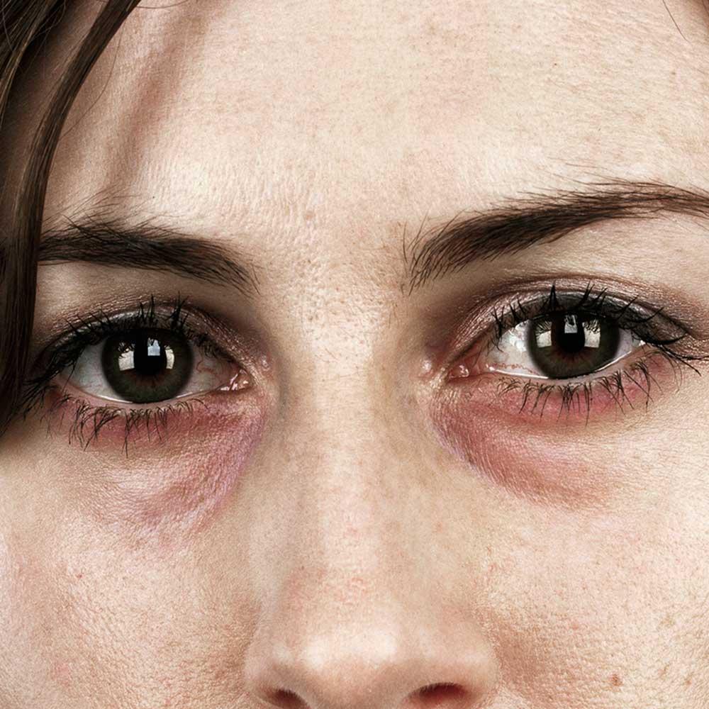 Fullsize Of Red Eye Remover