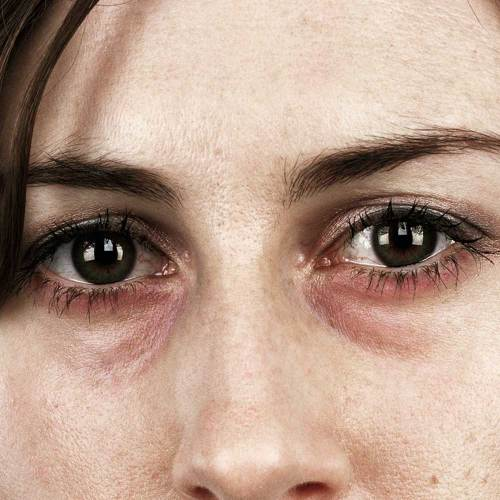 Medium Of Red Eye Remover