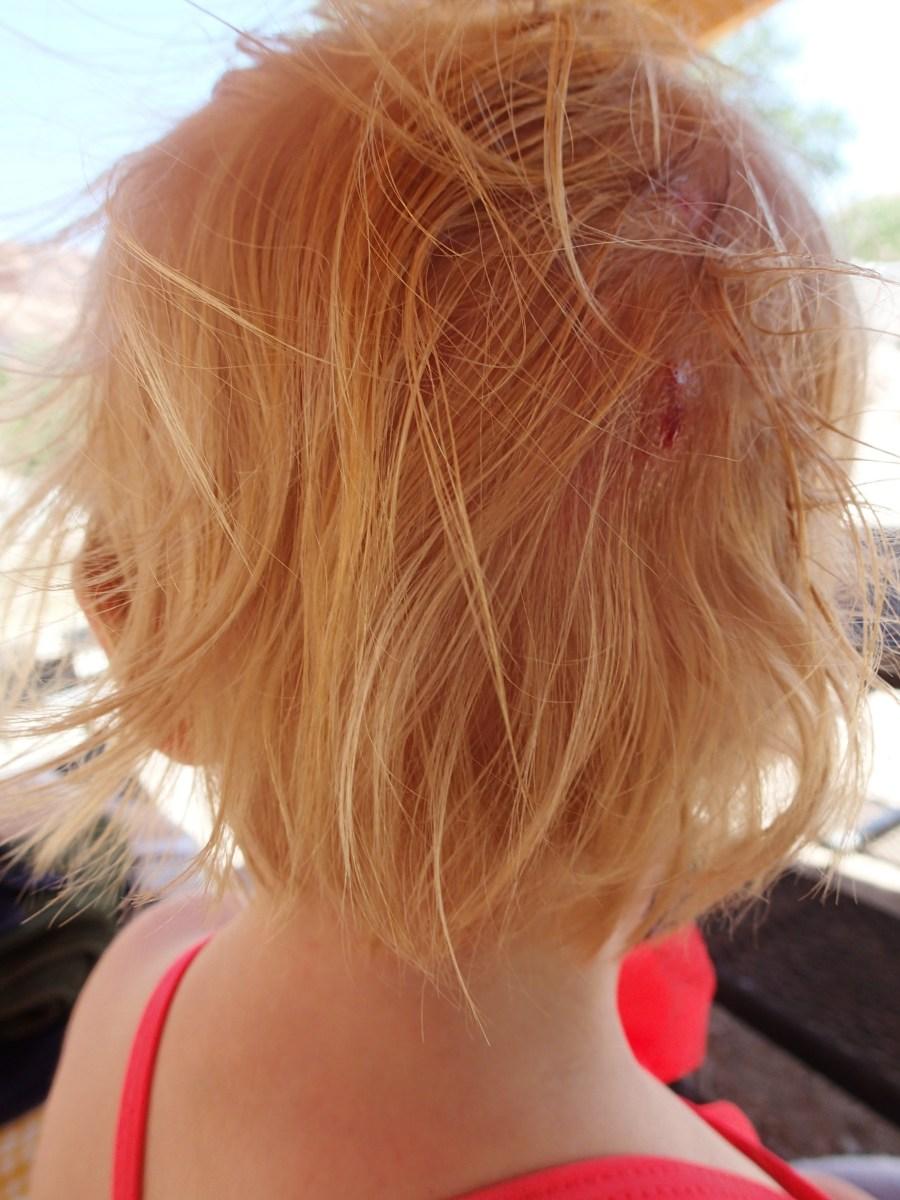 Ellen's head wound after we'd cleaned it up a bit.