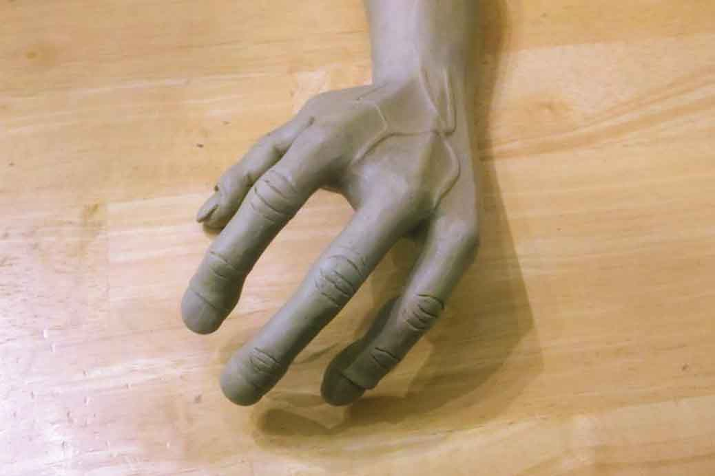 An Extremely Rare and Bizarre Disorder - Alien Hand Syndrome