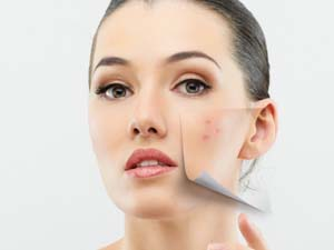 simple-ayurvedic-beauty-tips-for-your-face-stylecraze-1393529126ngk84-520x390