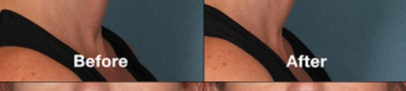 Before and After Exploring Kybella CosmetiCare