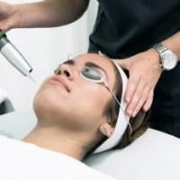 Pigmentinių dėmių šalinimas frakciniu lazeriu – efektyvus ir saugus būdas susigražinti odos grožį