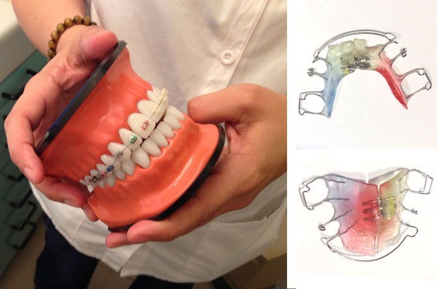 ortodoncia infantil 4