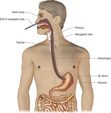 15. nasogastric tube placement | basicmedical key