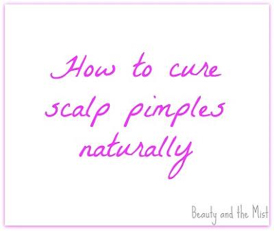 scalp-pimples