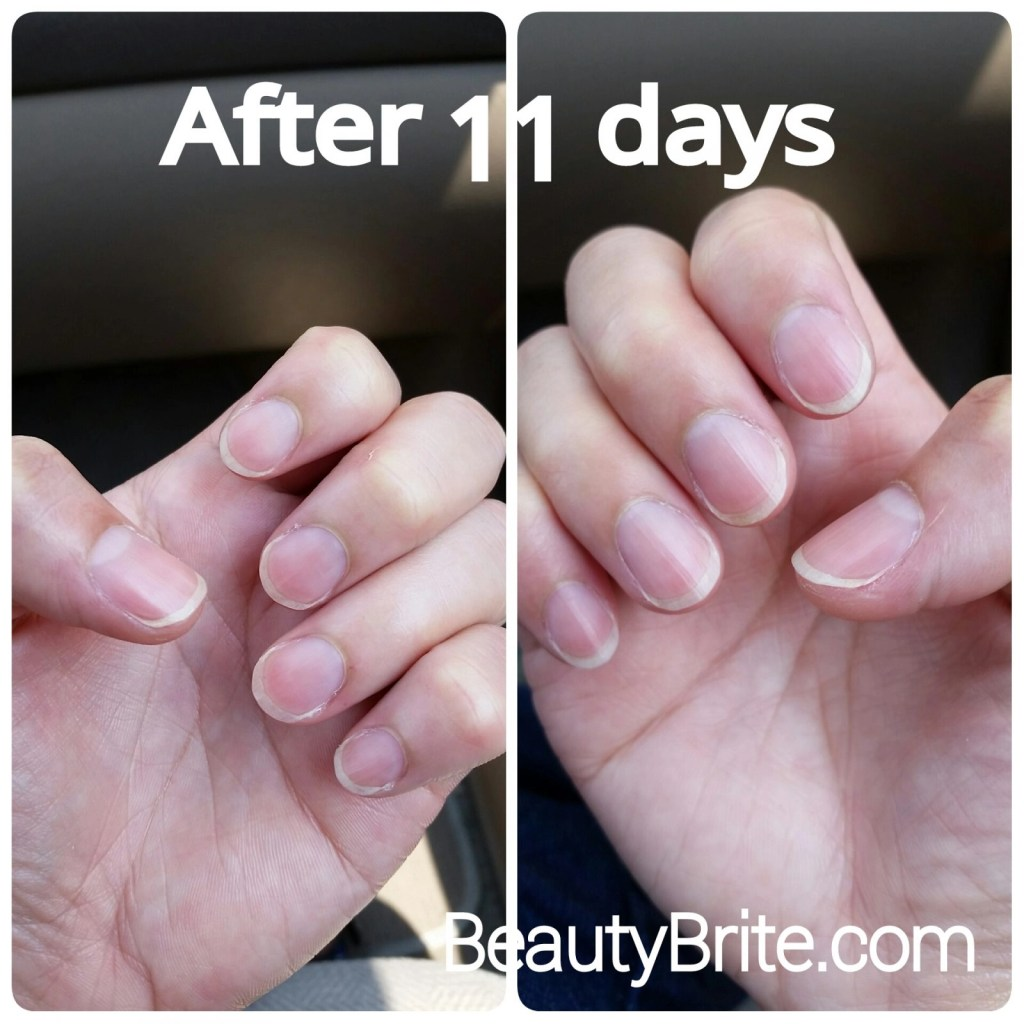 11 Day results Healthy Delights Hair, Skin and Nails Soft Chews