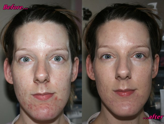 Benefit Oxygen Wow Before and After