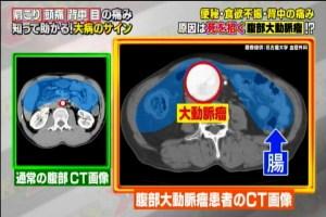 腹部大動脈瘤2
