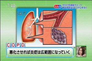 COPD2