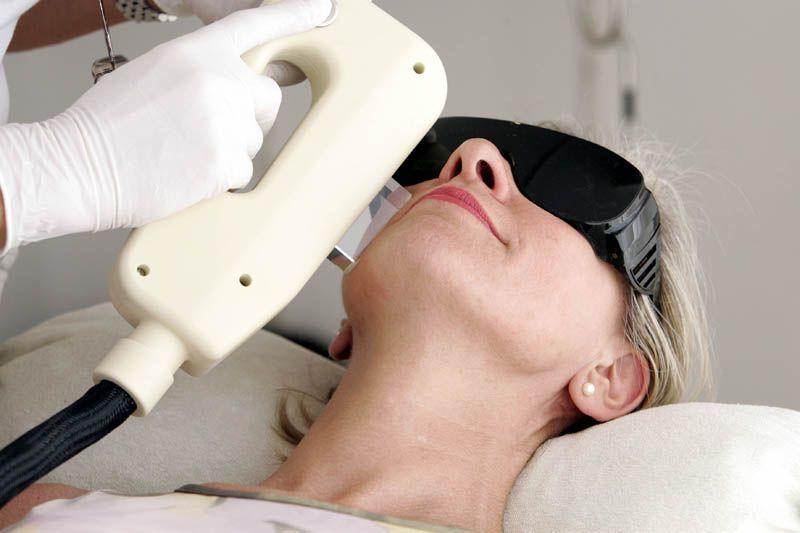 Riesgos de quemaduras por la depilación láser