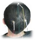 biofedback_Neurofeedback_Fribourg_teteElectrodes