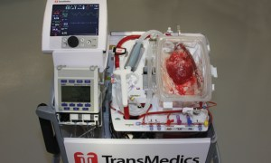 Transmedics OCS