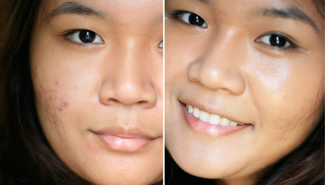 Amazing Way To Remove Ugly Acne Marks