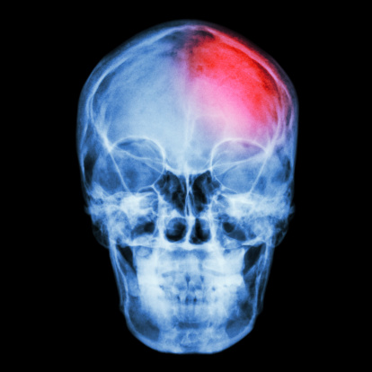 Film X-ray skull and headache. (Stroke,Cerebrovascular accident)