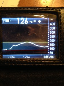 The Dexcom screen, showing the current BS reading, a trend arrow, and a 5 hour overview