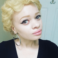 10 Stunning Photos of Black Albinos from the #InMySkinIWin Campaign, Celebrating Albino Beauty
