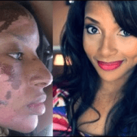 Black Beauty Vloggers Tout Chemical Peels as the Answer to Hyperpigmentation