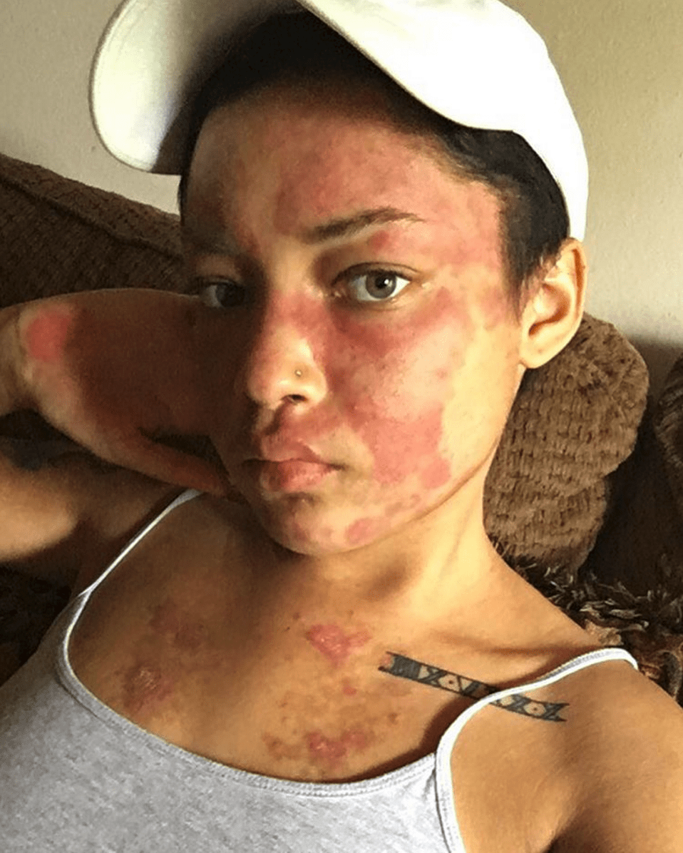 This Black Woman is Sharing Images of Her Lupus Flare Ups to Raise Awareness of the Disease