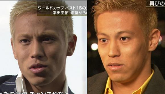 本田圭佑「W杯予選欠場、レーシック手術失敗が原因?」との報道…専門医も可能性を示唆