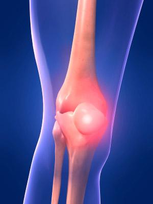 knee-pain3